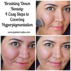 4 easy steps to conquering hyperpigmentation through the power of makeup!
