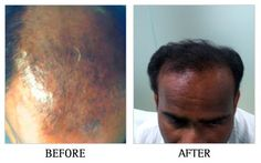 PRP For Hair Loss - Platelet Rich Plasma for Hair Loss is a very promising treatment and in certain cases has seen reversal of miniaturized hair in the vertex area of the scalp. PRP treatment is done once a month.   As PRP uses your own blood, this treatment is free from the risk of allergies and allergic reactions. However, to be sure we select an experienced dermatologist to deliver your injectable treatments.