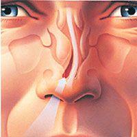 Can Rhinoplasty Surgery Fix Asymmetrical Nostrils? | Plastic Surgery Blog