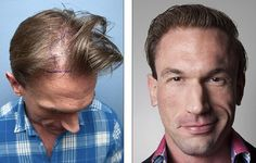 Embarrassing Bodies Star Dr. Christian Jessen Hair Transplant