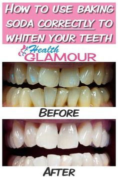 How to use baking soda correctly to whiten your teeth http://reviewscircle.com/Teeth-Whitening-4-You