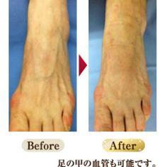 【手足の浮き出た血管】 毛細血管を活性化させて予防しよう| メディカルダイエットでメソセラピーや脂肪溶解注射、サーマクール|コラム|新着情報|東京、六本木の美容皮膚科(美容外科)Dr.アンディーズクリニックのメソセラピー