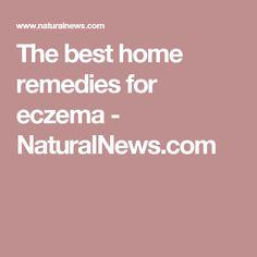 The best home remedies for eczema - NaturalNews.com #EczemaFeet #EczemaRash