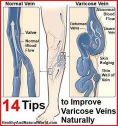 Natural Remedies For Varicose Veins Les remèdes maison pour les varices - Apple cider vinegar can get rid of those pesky varicose veins! Read on in this article to learn more about this. Varicose Vein Remedy, Varicose Veins Treatment, Natural Health Remedies, Natural Cures, Natural Skin, Natural Healing, Health And Beauty Tips, Health Tips, Foot Remedies