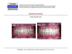 Casi clinici ortodontici Affollamento dentale http://www.studiodentisticobalestro.com/2014/05/affollamento-dentale_27.html