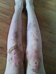 """The first time I saw my body after being in the hospital left me in awe. My legs weren't pale, they were different shades of blue and purple. It matched the bruise on my eye. I didn't remember how half of them got there. These legs weren't mine. This body wasn't mine. It belonged to someone else."" (Charlie) KLK"