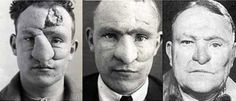 primeras-cirugias-plasticas-primera-guerra-mundial2