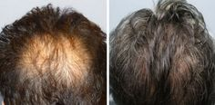 Why hair transplant is the only durable and #permanent #solution of a hair loss problem