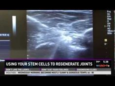 Using Your God-given Adult Stem Cells to Regenerate Joints