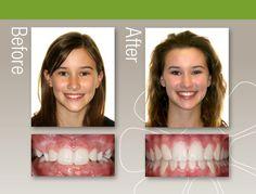 Before & After - Albuquerque Rio Rancho NM - Jorgensen Orthodontics www.gregjorgensen.com #braces #JorgensenOrtho #BeforeAndAfter