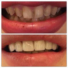 #جراحي_لثه #جراحي_زيبايي #ایمپلنت #اعتماد_به_نفس #انرژي_مثبت #لبخند #لامينيت #سفيد #كامپوزيت #موفقیت #مثبت_اندیشی ##laminate #laminateveneers #dentist #dentistry #success #smile #smiledesign #bleaching #beautiful #veneering #composite #cosmeticdentistry #porcelaincrown #porcelainveneers # by drsamanyazdani Our General Dentistry Page: http://www.myimagedental.com/services/general-dentistry/ Google My Business: https://plus.google.com/ImageDentalStockton/about Our Yelp Page…