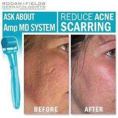 Reducing acne scars. www.kristinagarcia.myrandf.com