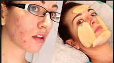 potato for acne scars Acne Skin, Acne Scars, Pimple Scars, Potato For Acne, Raw Potato, Sweet Potato, Bio Oil Scars, Routine, Scar Treatment