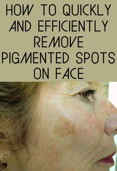 How to quickly and efficiently remove pigmented spots on face.