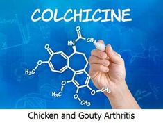 Chicken and Gouty Arthritis -  Chicken just like beef and pork contains moderately high levels of purine.