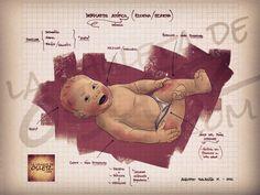 Dermatitis atópica en el bebé