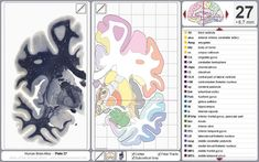 Brain Atlas - coronal sections w/labels of anatomical structures
