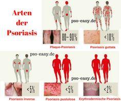 Man unterscheidet viele Arten der #Psoriasis.Welche sind die verbreitetsten? #psoeasy #Schuppenflechte