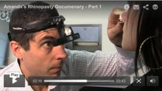 Watch Vancouver rhinoplasty patient Amanda in this 4 part video documentary. The objectives of these videos is to help people considering surgery get a realistic sense for what it is really like to have surgery. We highlight the consulting process and her recovery. http://8west.ca/rhinoplasty/amandas-rhinoplasty-documentary-part-1/?utm_campaign=coschedule&utm_source=pinterest&utm_medium=Dr.%20Buonassisi%20%7C%20Fiore%20Skin%20Clinic%20and%208%20West%20Cosmetic%20Surgery