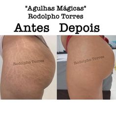 This Tattoo Artist Makes Stretch Marks Disappear Before Your Eyes Many women become frustrated with their pesky stretch marks, but a tattoo artist from São Paulo, Brazil, has found a way to make them less noticeable. Stretch Mark Remedies, Stretch Mark Removal, Strech Mark Tattoo, Skin Tips, Skin Care Tips, Cellulite, Beauty Skin, Health And Beauty, Bio Oil Stretch Marks