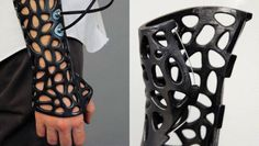 Could This 3-D Printed Cast Really Heal Bones Faster? A DESIGNER CLAIMS THAT HIS CONCEPT FOR A 3-D PRINTED CAST WOULD SHORTEN THE BONE-HEALING PROCESS NEARLY 40%. WE ASK HAND SURGEON MICHAEL HAUSMAN TO WEIGH IN.