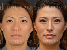 Beverly Hills Rhinoplasty Specialist Dr. Donald Yoo performed a primary Asian rhinoplasty and upper blepharoplasty. This before and after picture was taken at 2 month post surgery. #nosejob #rhinoplasty #asian #asianrhinoplasty #doubleeyelid #eyelid #plasticsurgery #beforeandafter