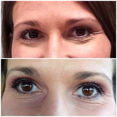 Rodan + Fields Eye Cream before and after! I can help you have the best skin of your life! www.visibleproof.myrandf.com