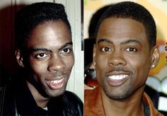 "Chris Rock: funny and funnier -- more sure of himself! ""Ill Grills: Celebrity teeth makeovers"" from NY Daily News http://nydn.us/H2kHlL"