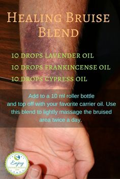 If you bruise easily, you'll be glad to know that you can use essential oils to help you heal your bruises fast!