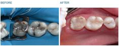 Safe Amalgam Removal - Case 4 Amalgam fillings, if small can be reliably replaced with tooth coloured fillings applied directly into the tooth cavity. Rubber dam, a rubber mask, should always be worn over the teeth to prevent the patient ingesting the waste mercury filling material and to ensure that a good bond is made between the tooth and the new tooth coloured (composite) filling. BEFORE: Note the dark grey-black colour of the mercury based filling  AFTER: Tooth coloured fillings are…