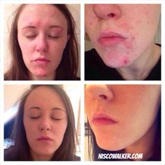 Two week results for Herbalife health coach Natalie Boyle with Herbalife Skin! Dermatologist tested, unisex, sulphate and paraben free, and clinically tested to show significant improvements in 7 days!  #beauty #skincare #herbalifeskin  www.niscowalker.com