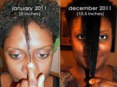 Ayurvedhic Hair Loss Secret Recipe Revealed