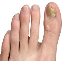 3 Ways For Toenail Fungus Treatment