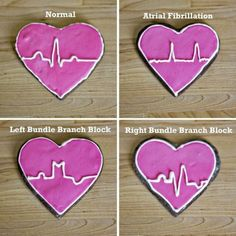 ekg cookies.  perfect for the med student in your life!