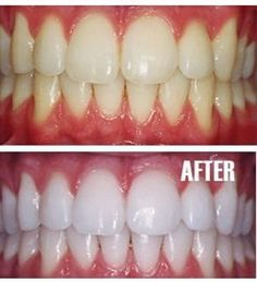 a tiny bit of toothpaste mixed with 1 teaspoon baking soda plus of hydrogen peroxide and half a teaspoon water to brush teeth whiter. Once your teeth are good and white, limit yourself to using the whitening treatment once every month or two. Beauty Secrets, Diy Beauty, Beauty Hacks, Fashion Beauty, Beauty Bay, Beauty Advice, Homemade Beauty, Beauty Ideas, Tips Belleza