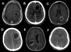 Cerebral ring enhancing lesions- MAGIC DR mnemonic: M - Metastasis A - Abscess G - Glioblastoma multiforme I - Infarct (subacute phase) C - Contusion D - Demyelinating disease (eg. tumefactive MS) R - Radiation necrosis Although you can't possibly know by looking at the single images, for what it is worth, the above cases are; A = metastasis, B = abscess, C = radiation necrosis, D = GBM, E = demyelination, F = contusion.