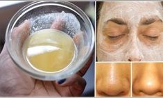 This Is The Best Face Mask. Fairness, Acne, Blackheads, Wrinkles – All In One Face Mask - Best Health Page Baking Soda Mask, Baking Soda For Acne, Baking Soda And Lemon, Baking Soda Uses, Home Remedies, Natural Remedies, Health Remedies, Herbal Store, Coconut Oil
