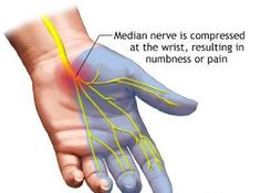 Nerve Conduction Studies  Asked whether they have nerve conduction studies…