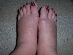 Opgezwollen handen en voeten zijn verleden tijd Wist je dat hetovergrote deel van de bevolking serieus last heeft van opgezwol...