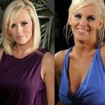 Jenny McCarthy plastic surgery is not rumor anymore. To enhance her appearance she had botox, breast implants, nose job and few other cosmetic procedures Jenny Mccarthy, Celebrity Plastic Surgery, Cosmetic Procedures, Liposuction, Celebrity Photos, Actors & Actresses, Things To Come, Celebrities, Pinecone