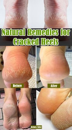Natural remedies for cracked heels! Usually winter meets women with an unpleasant surprise – cracked heels. This condition can be quite hurtful and it definitely does not attract the eye. Heal Cracked Heels, Dry Cracked Feet, Health Remedies, Home Remedies, Natural Remedies, Health And Beauty Tips, Health And Wellness, Wellness Tips, Cracked Heel Remedies