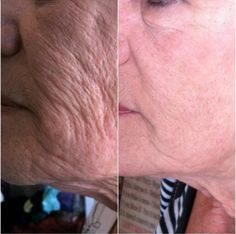 Are you ready for amazing skin?www.loubarnette.nerium.com