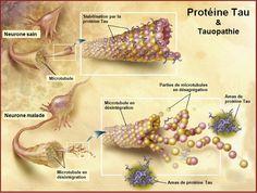 Alzheimer : un médicament anticancéreux pourrait ralentir la maladie (remise en cause de la théorie dominante) | PsychoMédia