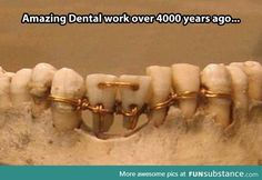 """pearl-nautilus: The earliest evidence of ancient dentistry we. pearl-nautilus: """"The earliest evidence of ancient dentistry we have is an amazingly detailed dental work on a mummy from ancient Egypt. Ancient Aliens, Ancient Egypt, Ancient History, Objets Antiques, Mystery Of History, Medical History, In Ancient Times, Interesting History, Interesting Photos"""