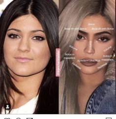 "Kylie Jenner criticizes plastic surgery and describes it as Kylie Jenner claims she is ""offensive"" daily online mailKylie Jenner Plastic Surgery Before and After Kylie Jenner Plastic Surgery, Face Plastic Surgery, Celebrity Plastic Surgery, Kylie Jenner Surgery, Nose Surgery, Cheek Fillers, Botox Fillers, Dermal Fillers, Botox Brow Lift"