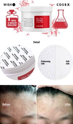 [COSRX] One Step Pimple Clear Pads The fast way to get rid of acne and dead cells ! Effective Pictures We Offer You About skin care products A quality picture can tell you many things. You can find the most beautiful pictu Age Spots On Face, Brown Spots On Face, Skin Care Routine Steps, Skin Care Tips, Eyeliner For Hooded Eyes, Winged Eyeliner, Eyeliner Tutorial, Eyeshadow Tutorials, Eye Tutorial