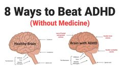 Kids Health 8 Ways to Beat ADHD (Without Medicine) - Attention-deficit hyperactivity disorder, or ADHD, is a neuropsychiatric disorder characterized by inattentiveness, hyperactivity, and impulsivity. Adhd Medicine, What Is Adhd, Adhd Diagnosis, Adhd Help, Adhd Medication, Adhd Diet, Adhd Brain, Brain Gym, Baby Boys