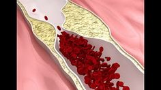 How to Clear Blocked Arteries with Natural Health Remedies - Everyday Remedy Clean Arteries, Clogged Arteries, Remedies For Menstrual Cramps, Medical Intuitive, Natural Health Remedies, Foods To Eat, Fibromyalgia, Herbs, Things To Sell