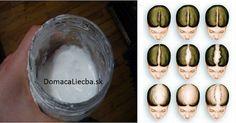 Domáci šampón, s ktorým vaše vlasy zhustnú a porastú rýchlejšie než kedykoľvek predtým