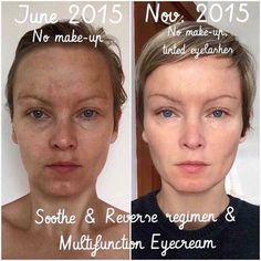 Want great skin without an office visit or prescription? Try Rodan + Fields regimens for 60 days risk free with our money back guarantee. If you're like most customers, you won't be returning it! See what's right for you at this link: https://jstout.myrandf.com/Pages/OurProducts/GetAdvice/SolutionsTool #sundamage #acne #sensitiveskin #antiaging #skincare